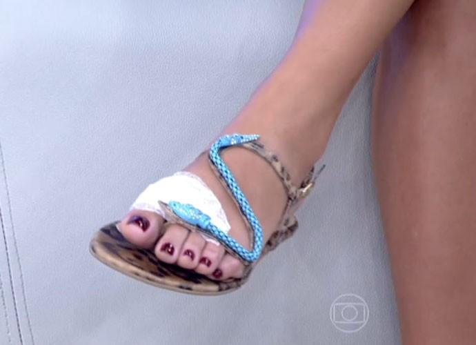 Fernanda Souza fala de corte no pé (Foto: TV Globo)