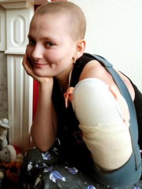 sarcoma cancer raro
