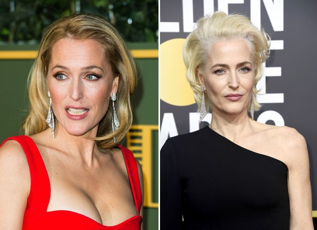 Gillian Anderson no antes e depois (Foto: Getty Images)