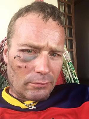 Paul Lerfald, de 41 anos, postou foto em rede social na qual aparece com o rosto machucado (Foto: Reprodução/Facebook)