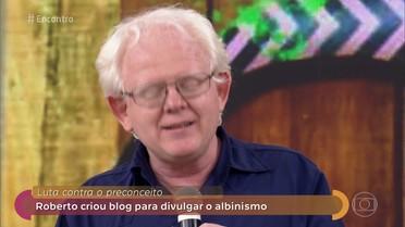 Roberto criou blog para divulgar o albinismo