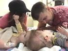 Médicos separam gêmeos siameses unidos pela cabeça nos EUA