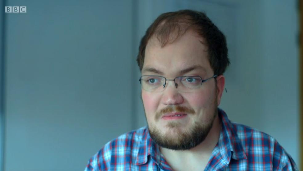 Tudo começou com um episódio de paralisia facial (Foto: BBC)