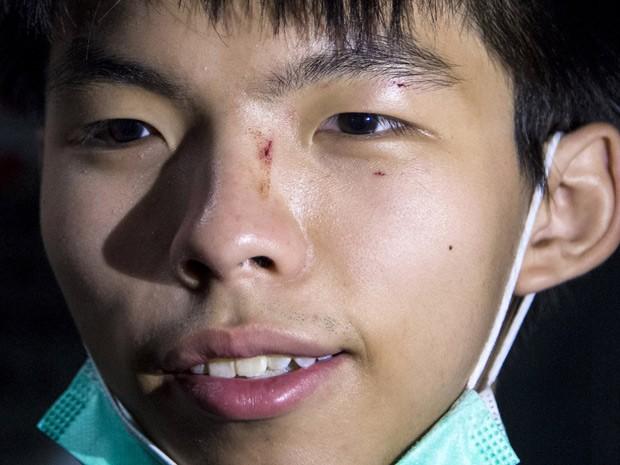 Líder estudantil Joshua Wong mostra seu ferimento em um hospital em Hong Kong nesta segunda-feira (29), horário local  (Foto: Reuters/Tyrone Siu)