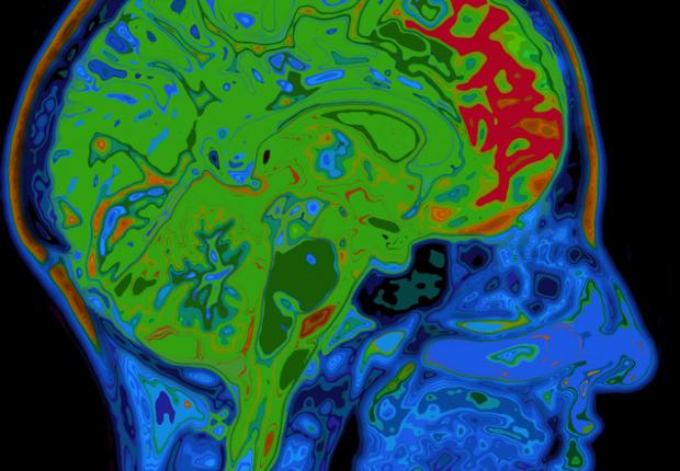 Cérebro (Foto: GE)