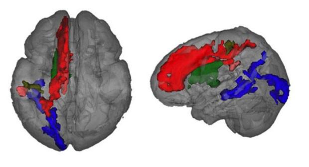 Scan mostra o desenvolvimento da mielina no cérebro de uma criança. (Foto: BBC)