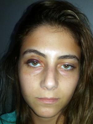 Marcas da agressão deixaram hematoma no rosto de Luciana (Foto: Arquivo pessoal)