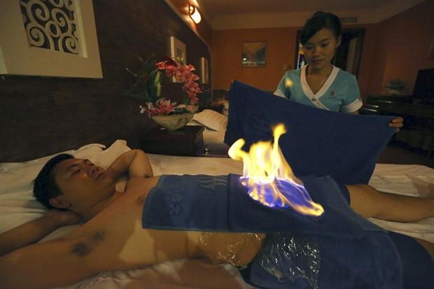 Terapeuta se prepara para apagar o fogo na área íntima de homem durante tratamento com chamas na China (Foto: Stringer/Reuters)
