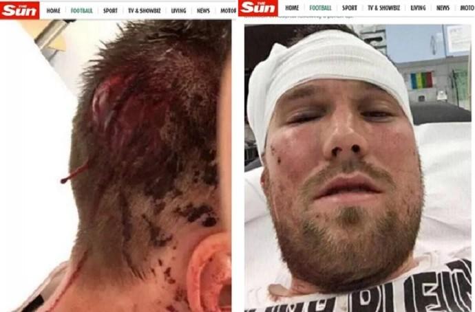Grosskreutz foi agredido por quatro homens na última terça (Foto: Reprodução/Twitter)