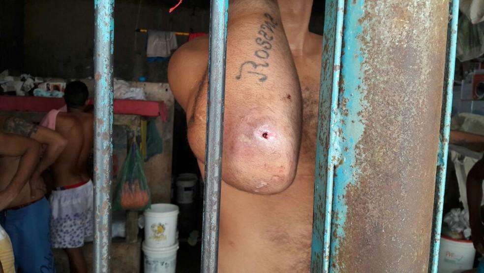 Detentos mostram feridas causadas pela dermatose (Foto: José Roberto/Sinpoljuspi)