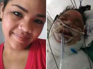 Aninha foi atingida pelas chamas e está em estado grave (Foto: TEM Você)