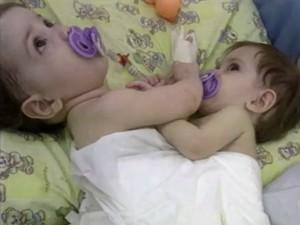 Irmãs nasceram grudadas pelo abdômen (Foto: Reprodução/RBS TV)