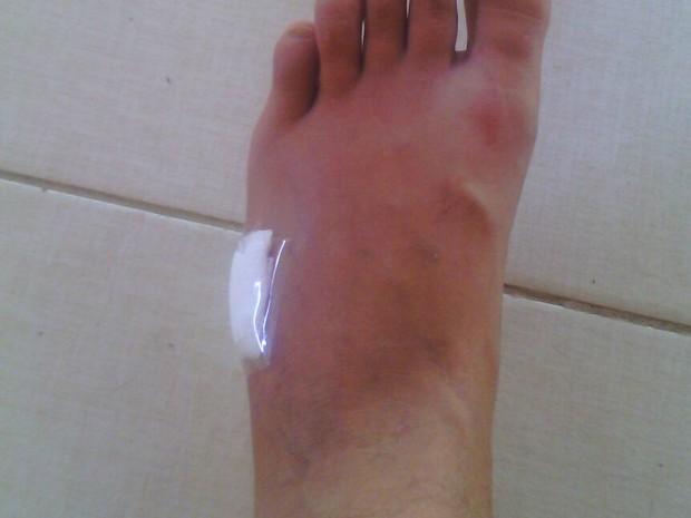Empresário teve o pé esporado por arraia (Foto: Divulgação)
