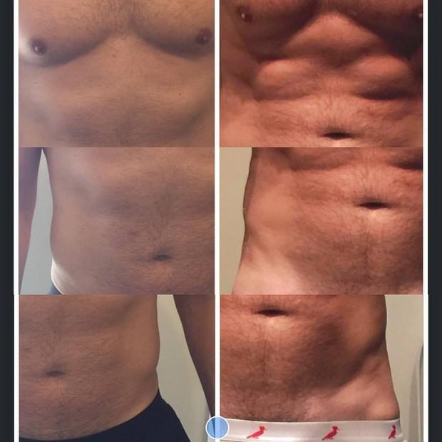 Fotos do antes e depois do tratamento feito por Alexandre Barillari na abdômen (Foto: Arquivo Pessoal)