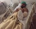 Marcelo Guimarães refaz cirurgia no joelho e recebe visita de Warlley Alves