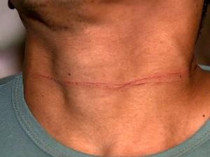 Motociclista teve o pescoço cortado por uma linha de pipa com cerol (Foto: Reprodução/EPTV)