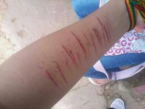 Foto mostra braço de adolescente vom braço cortado (Foto: Arquivo Pessoal)