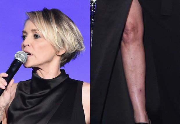 Sharon Stone exibiu manchas nas pernas (Foto: Matt Winkelmeyer/Getty Images)