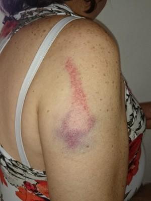 Mulher ficou com hematomas no braço (Foto: Arquivo Pessoal / Maria Fernanda Marques)
