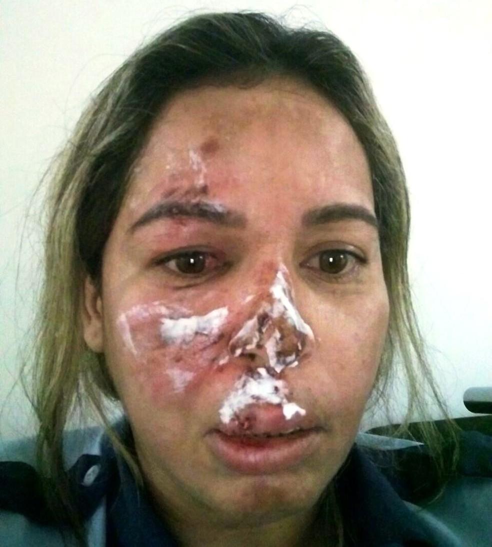 Gisele ficou com o rosto desfigurado (Foto: Arquivo Pessoal)