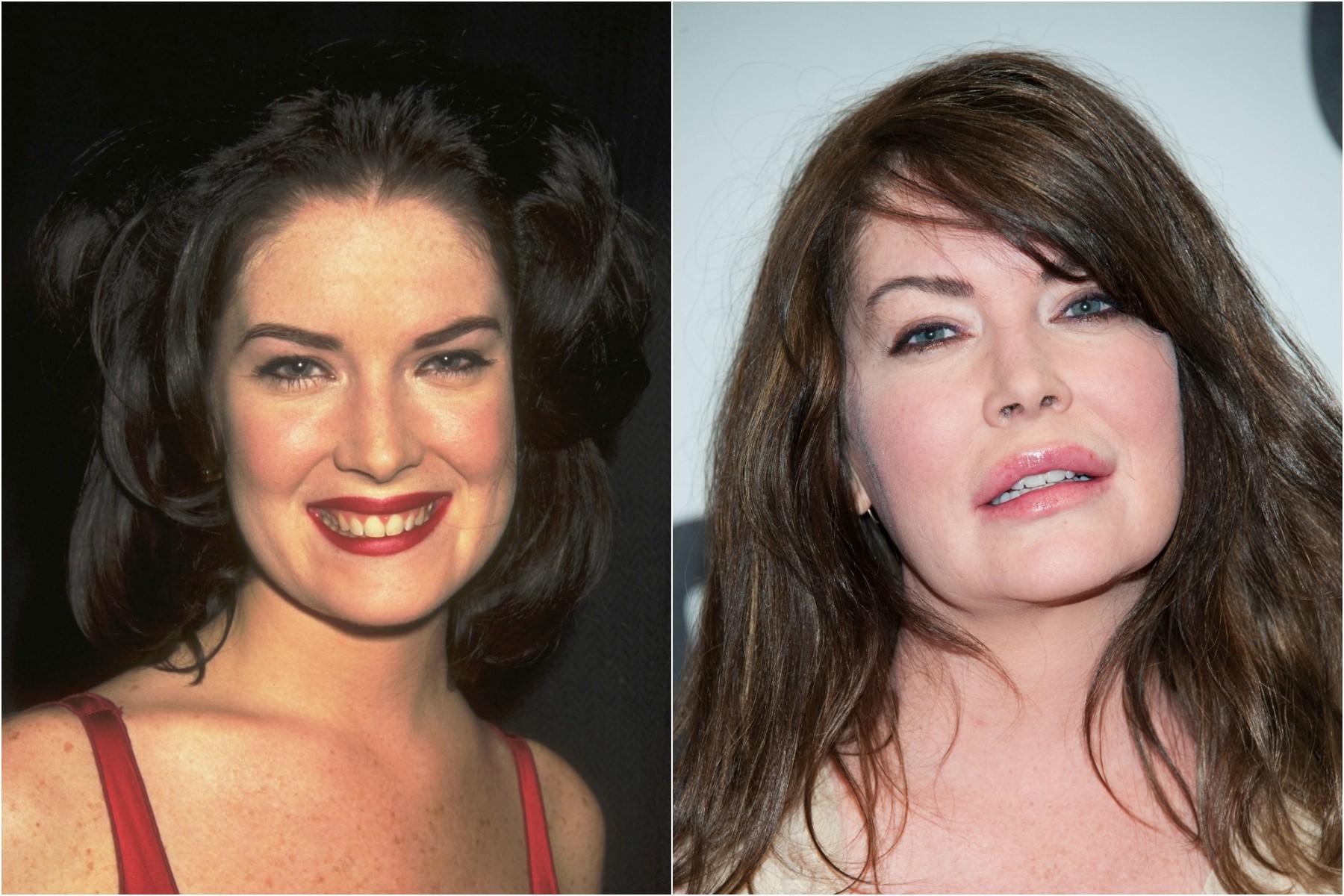 A atriz Lara Flynn Boyle em 1999 e em 2013. (Foto: Getty Images)