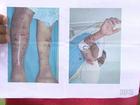 Pedreiro é internado em estado grave após ataque de cachorros em Ivaiporã