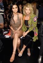 Kylie Jenner usa vestido curtinho e exibe cicatriz na perna