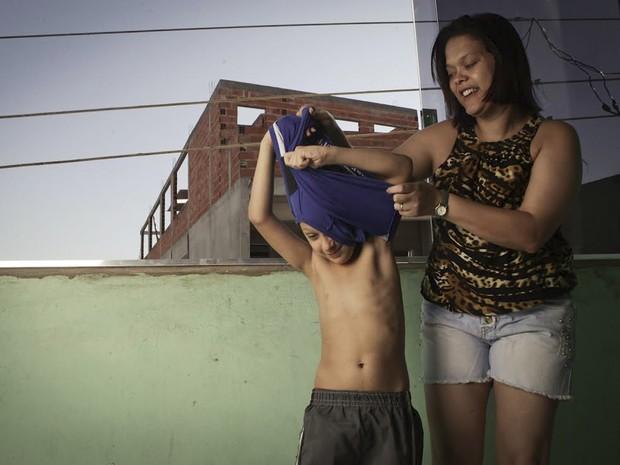 Kauã Soares Oliveira, de 7 anos, não tem as glândulas do corpo necessárias para transpirar (Foto: Caio Kenji/G1)