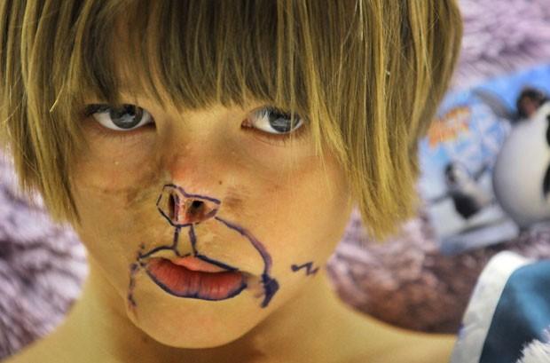 Charlotte Ponce, 10, com marcas feitas por médicos antes de uma cirurgia. Ela teve o rosto desfigurado por um guaxinim da família quando tinha 3 meses (Foto: AP)