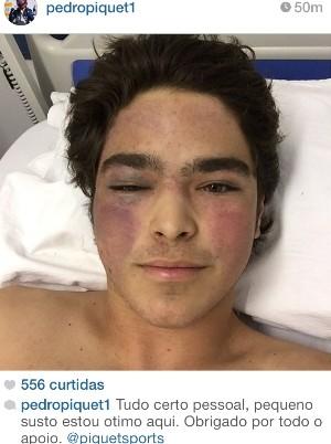 Pedro Piquet posta foto após acidente e agradece apoio, em Goiás (Foto: Reprodução/Instagram)