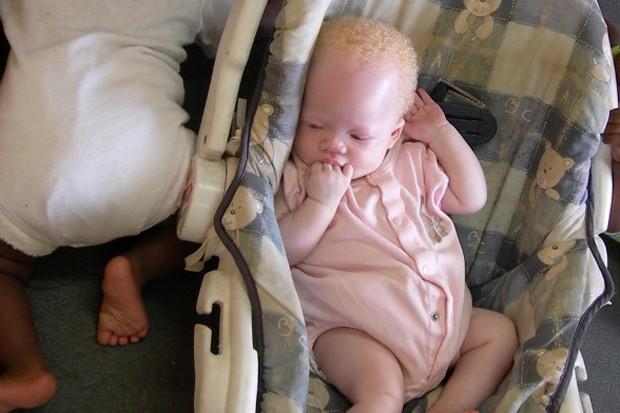 Foto da Anistia Internacional mostra bebé albino que foi abandonada em Lilongwe, no Malawi (Foto: Reprodução/Amnesty.org)