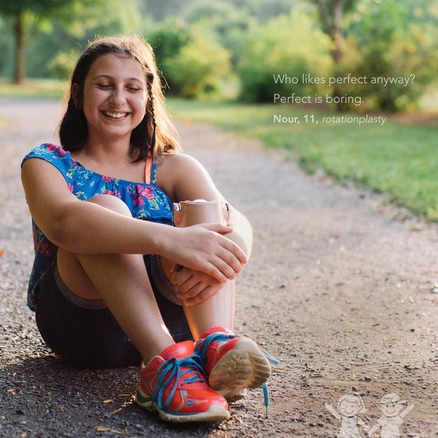 """""""De qualquer maneira, quem gosta de perfeição? O perfeito é entediante"""". Nour, 11 anos, plastia de rotação (Foto: Kate T. Parker/CHOA)"""