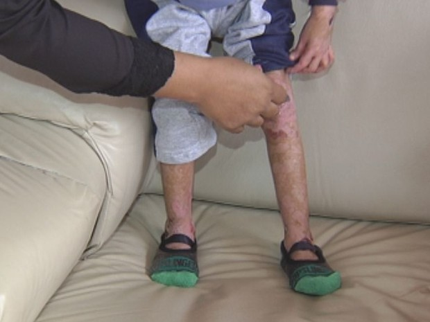 Mesmo sem traumas, crianças sofrem sérias lesões na pele (Foto: Reprodução/TV TEM)