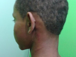 Criança agredida na Bahia (Foto: Ubaitaba.com)