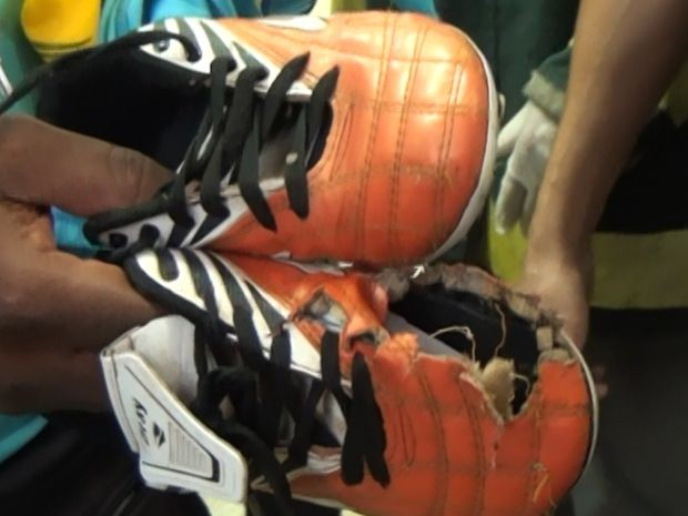 Buraco na chuteira de uma das vítimas mostra o impacto da descarga elétrica (Foto: TV Marília)