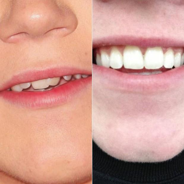 O antes e depois do sorriso de Niall (Foto: Reprodução/Twitter)