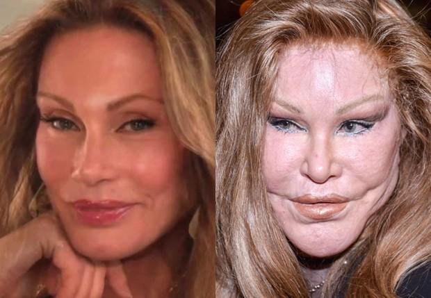 A socialite Jocelyn Wildenstein antes e após plásticas (Foto: Reprodução e Getty Images)