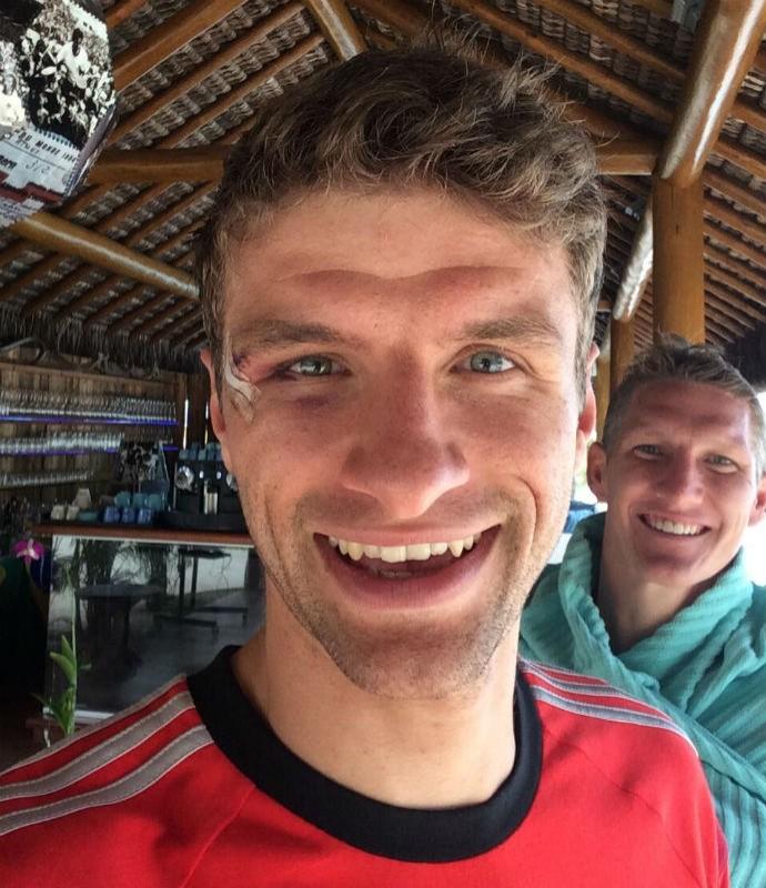 Thomas Müller mostra curativo no supercílio direito (Foto: Reprodução/instagram)