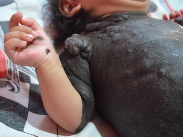 Família de Jaboticabal, SP, busca tratamento para a pequena Lauany  (Foto: Rodolfo Tiengo/G1)