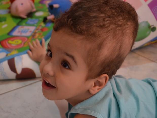 Marcos Vinicius nasceu com hidrocefalia  (Foto: Aline Nascimento/G1)