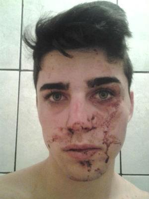 Maisson Dydimes Portes, de 19 anos, contou que é bissexual e que os rapazes os agrediram por esse motivo (Foto: Arquivo Pessoal)