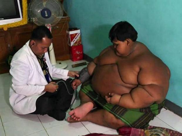 Arya Permana é considerado obeso mórbido (Foto: BBC)