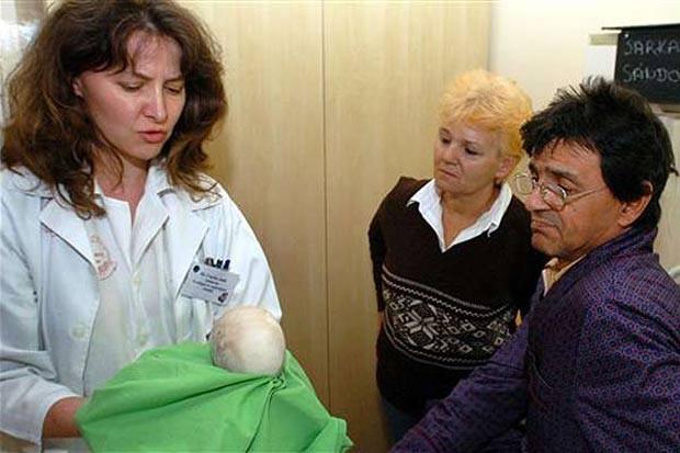 Em 2009, médicos do hospital Kenez Gyula, em Debrecen (Hungria), retiraram uma pedra de 1,125 quilo e 17 centímetros de diâmetro do rim do paciente Sandor Sarkadi. (Foto: MTI,Tibor Olah/AP)