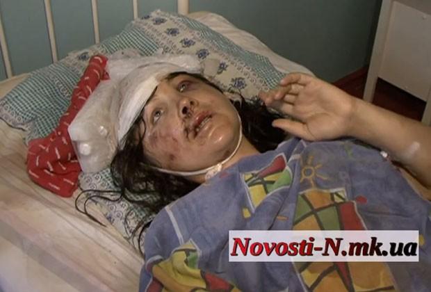Irina Krashkova em foto desta terça-feira (2) em hospital de Vradiyevka, na Ucrânia (Foto: Novosti- N.mk.ua/AP)