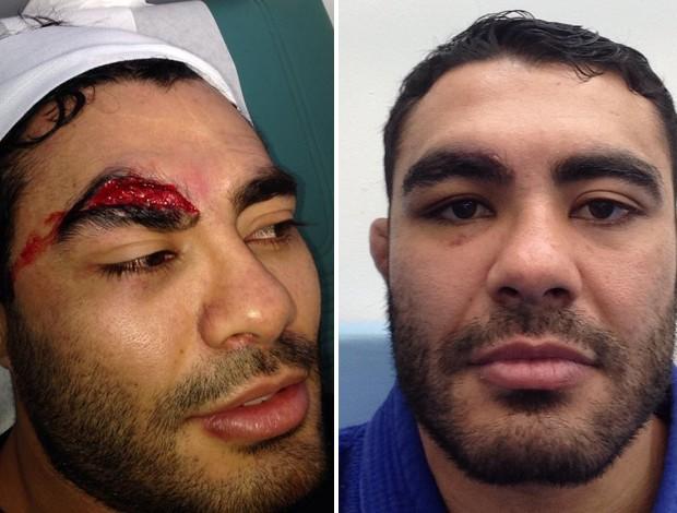 rafael sapo antes e depois rosto aberto mma ufc (Foto: Arquivo Pessoal)