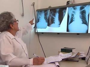 Tuberculose é uma inflamação no pulmão, provocada por uma bactéria (Foto: Imagem/TV Bahia)