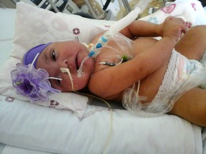 Há quase um ano, Isabelly está em tratamento contra imunodeficiência grave (Foto: Arquivo pessoal/ Wagner de Mello)