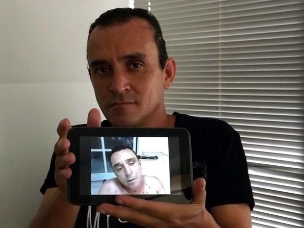 Antônio Carlos disse que foi um milagre ter sobrevivido  (Foto: Alan Schneider/G1)