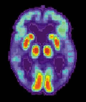 Estudo descobriu substância capaz de evitar morte do tecido cerebral, responsável pelo Alzheimer.  (Foto: BBC)