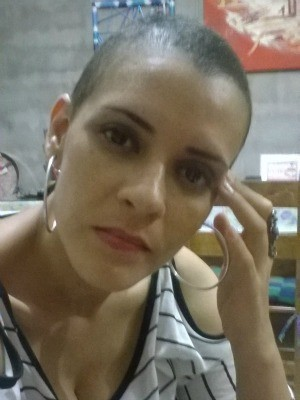 Resultado de imagem para leucemia mulher